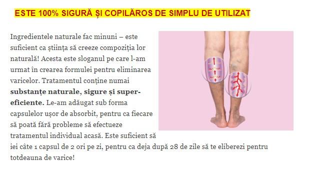 ce face ca venele să se micșoreze cauzele edemului la picioare și glezne